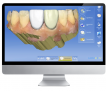Featured CEREC Case