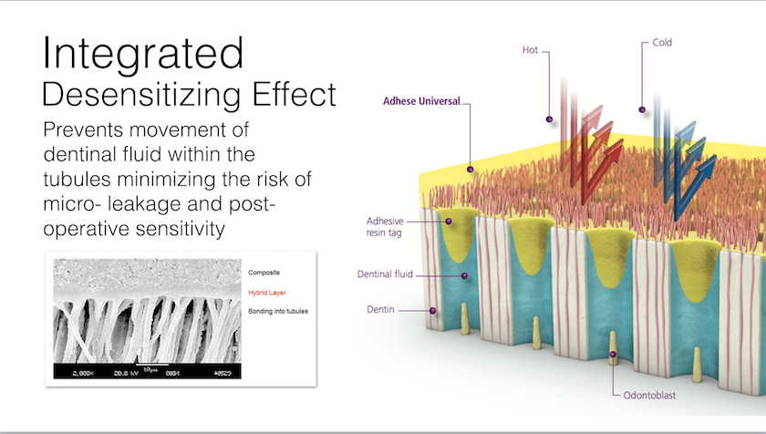 Adhese Universal Adhesive