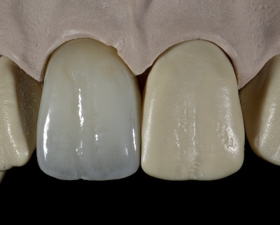 james Klim DDS, CEREC, Dentsply Sirona