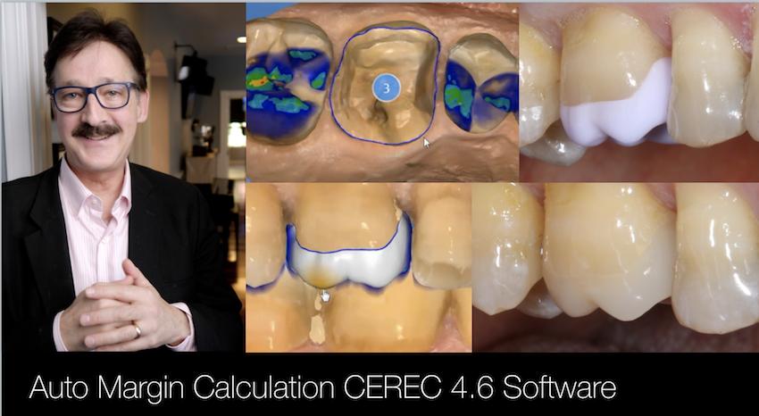 http://www.cadstar.org/video/cerec-margin-auto-calculation