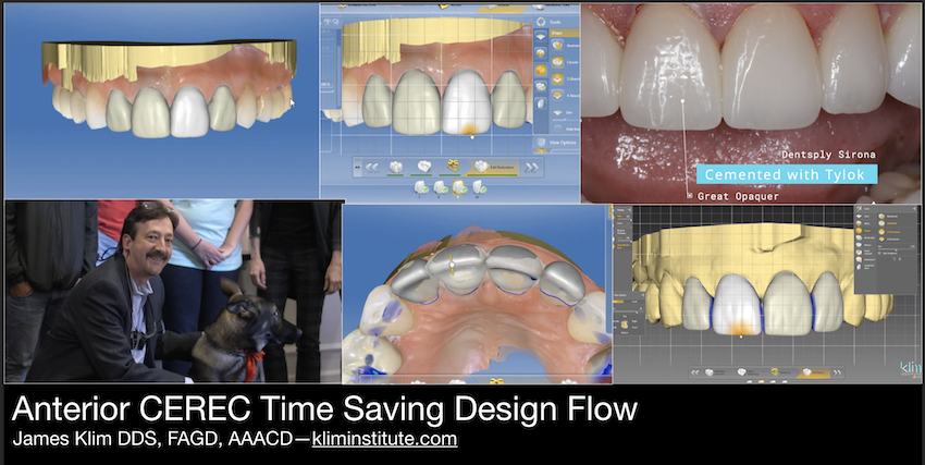 Part one video in BioJaw anterior design series. The way I save time in my anterior design theater is to go into the case preplanned with a wax-up which I now do in inLab, print the model and use the wax-up as a reduction guide and basis for making provis