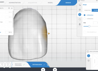 Designing the Midline in the CEREC Software