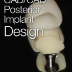 Posterior CAD/CAM Implant Design iBook by James Klim, DDS
